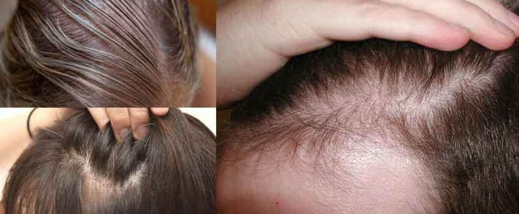 أفضل الخلطات الطبيعية لتكثيف الشعر الخفيف