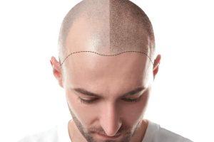 أهم الأسباب التي جعلت تركيا الوجهة الأولى لعمليات زراعة الشعر
